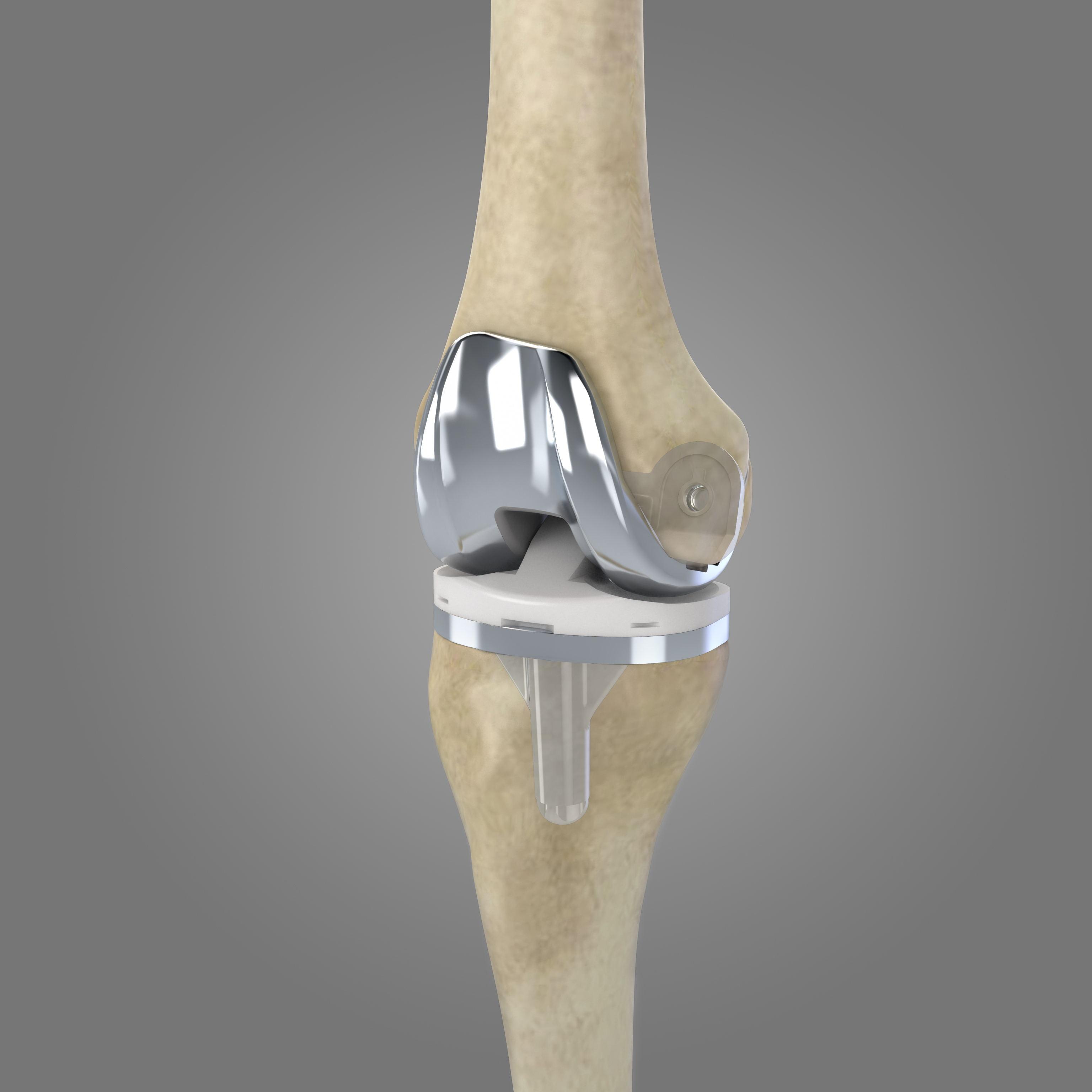 膝关节初次置换系统